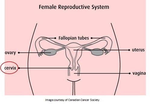 Faq Cervical Cancer